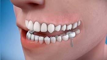 Implants - Starr General Dentistry Starr General Dentistry